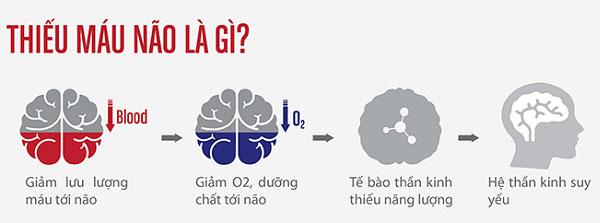 Thiếu máu não uống thuốc gì? 1