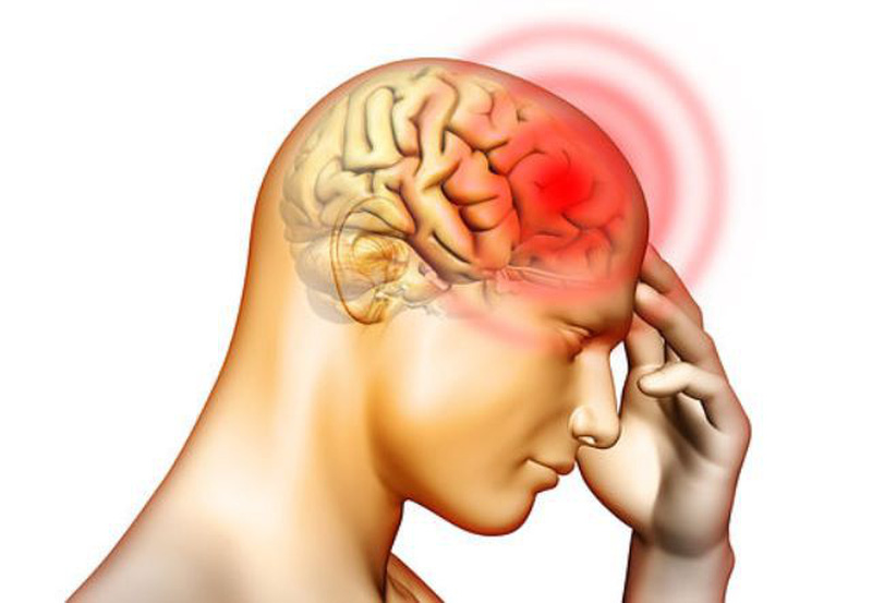 1. Thiếu máu não là gì? 1